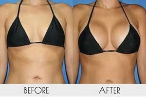 Breast Size Before-After