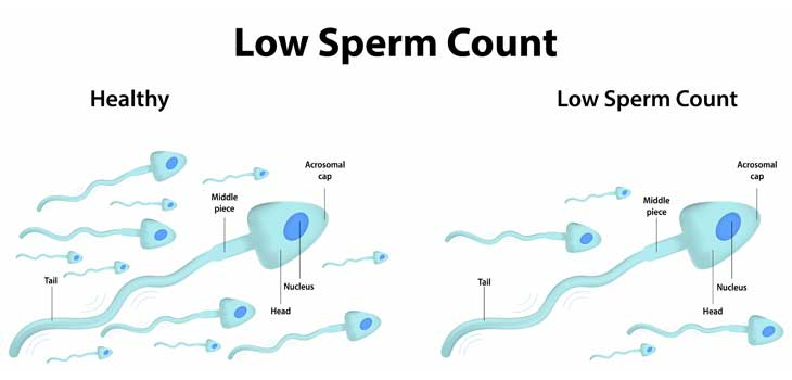 Healthy and Low Sperm Count