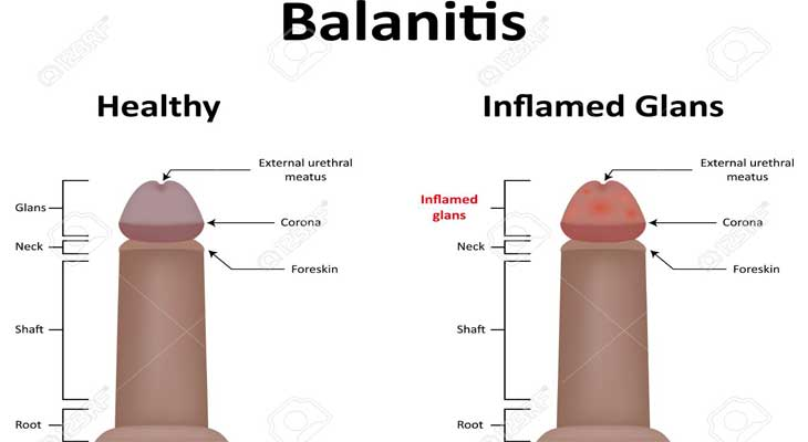 Balanitis Issue