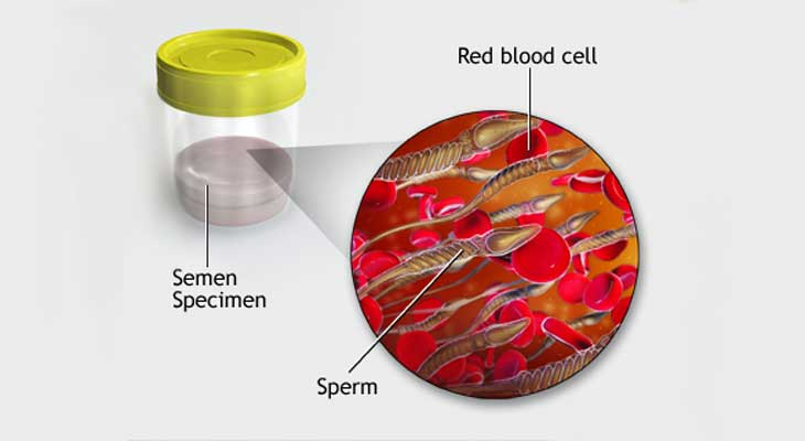 Blood in Semen Issue