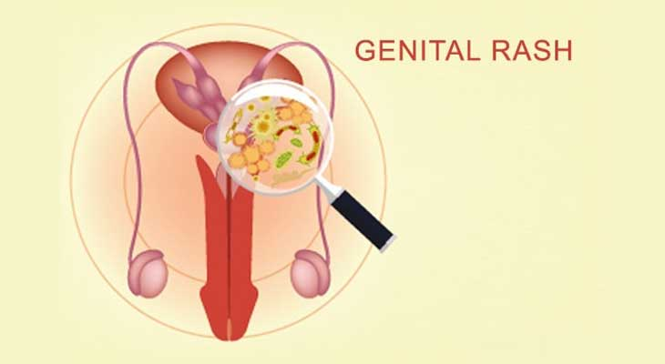 Penile Genital Rash Issue