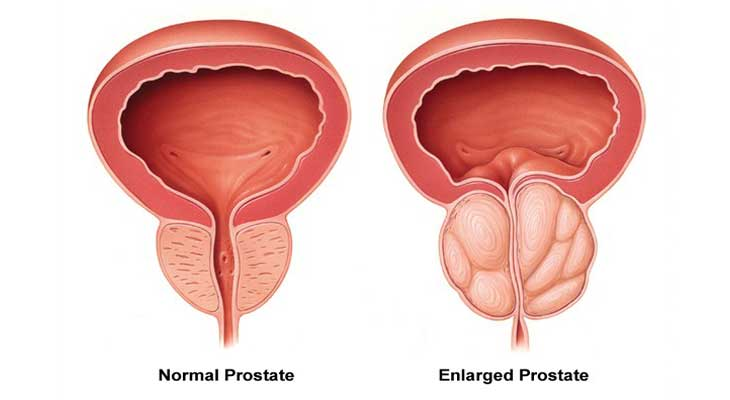 Prostate Enlargement Problem